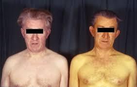 Лечение гепатита с петербург